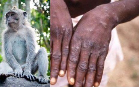 5 Hal Tentang Virus Cacar Monyet